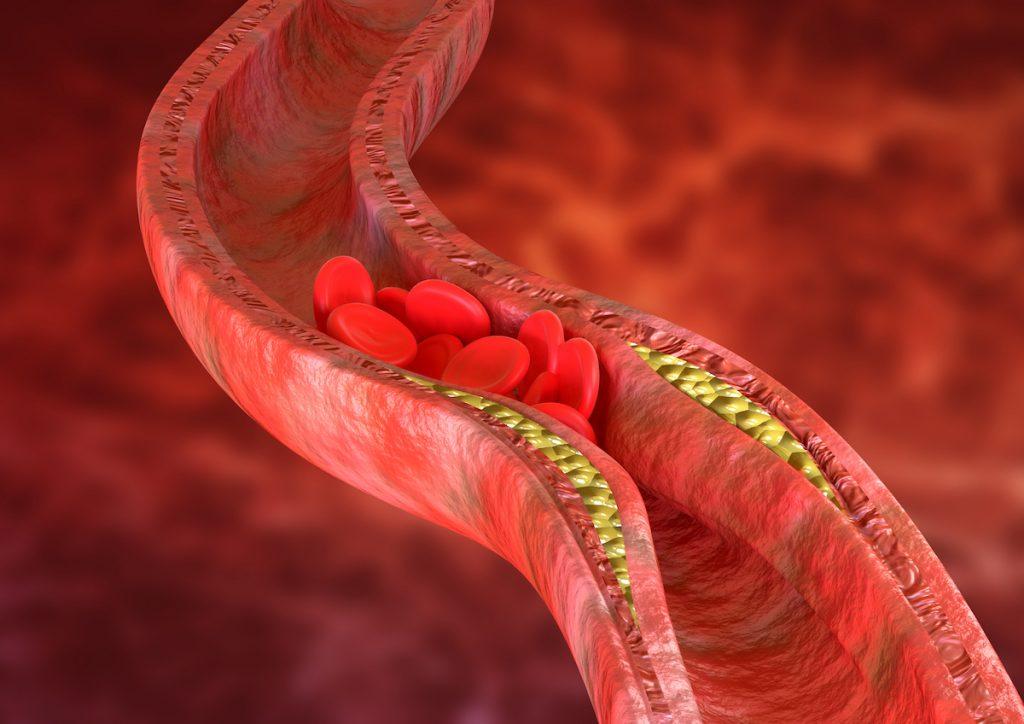 wysoki poziom cholesterolu a miażdżyca naczyń